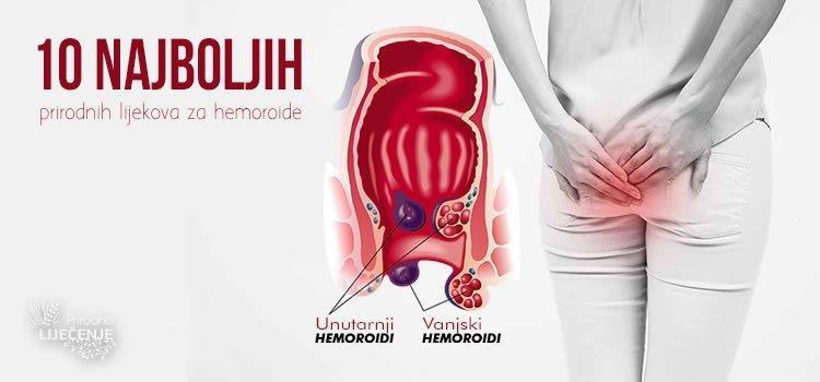 Prirodni lijekovi za hemoroide